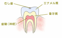 C0【ごく初期の虫歯】
