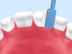 歯みがき指導(仕上げみがき)