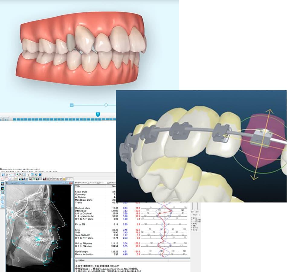 診断・3D治療計画の作成