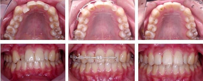 右上前歯の歯並び・表側の装置・6ヶ月で治した場