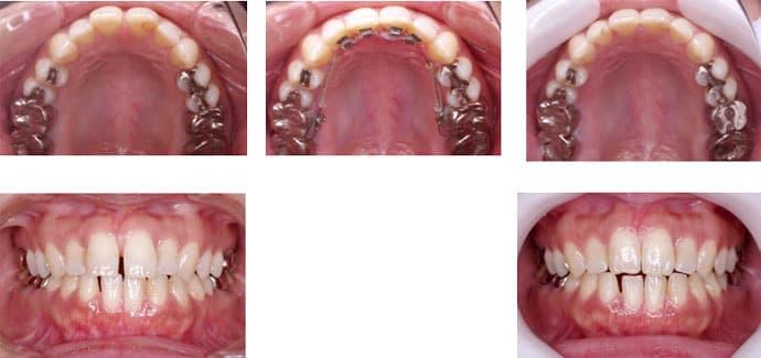 前歯4本の歯並び・裏側の装置・4ヶ月で治した場合