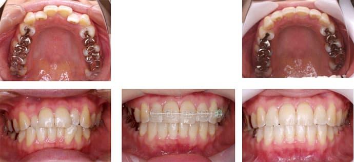 前歯4本の歯並び・表側の装置・7ヶ月で治した場合