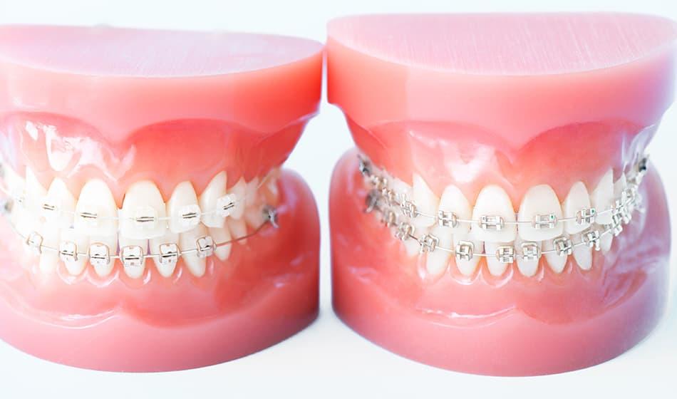 矯正歯科装置について