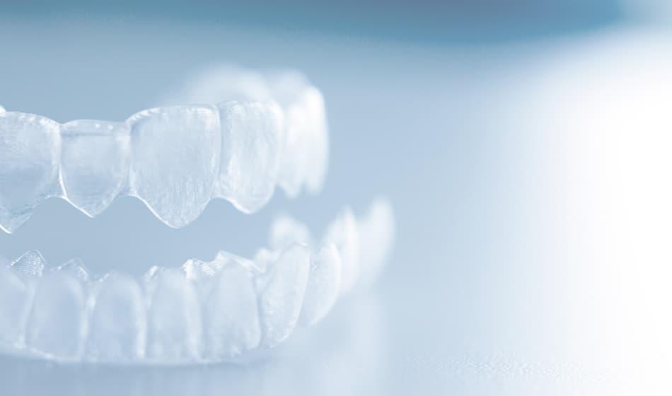 マウスピース型矯正(歯科)治療について