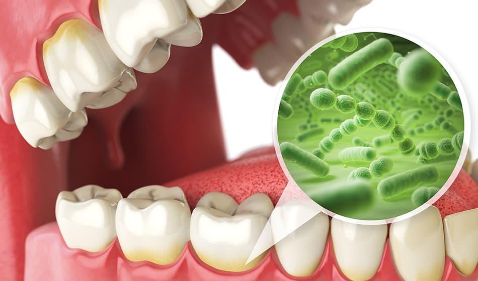 歯周病になる原因