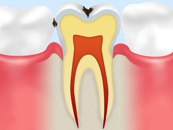 C1【エナメル質の虫歯】