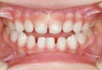 口腔習癖について(開咬を引き起こすもの)